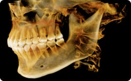 An example of what 3D Imaging will look like at Dr. Wilson's oral surgery office