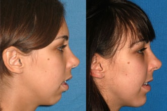 Before and after of an actual patient after corrective jaw surgery